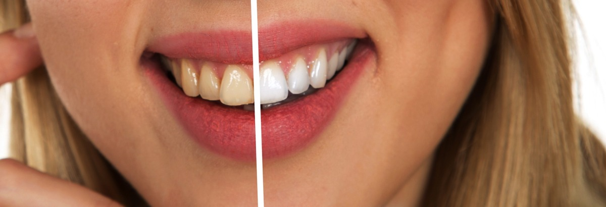 laser-assisted tooth whitening